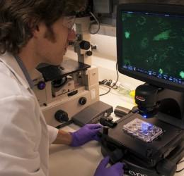 干细胞的应用与展望